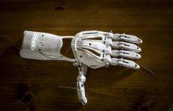 OpenBionics: Affordable Prosthetics